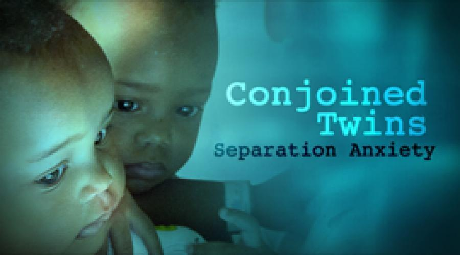 Conjoined Twins: Separation Anxiety next episode air date poster